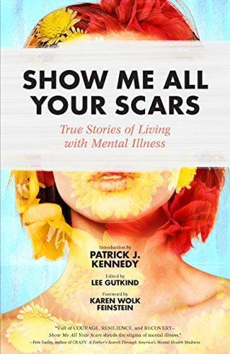 show Me All Your Scars