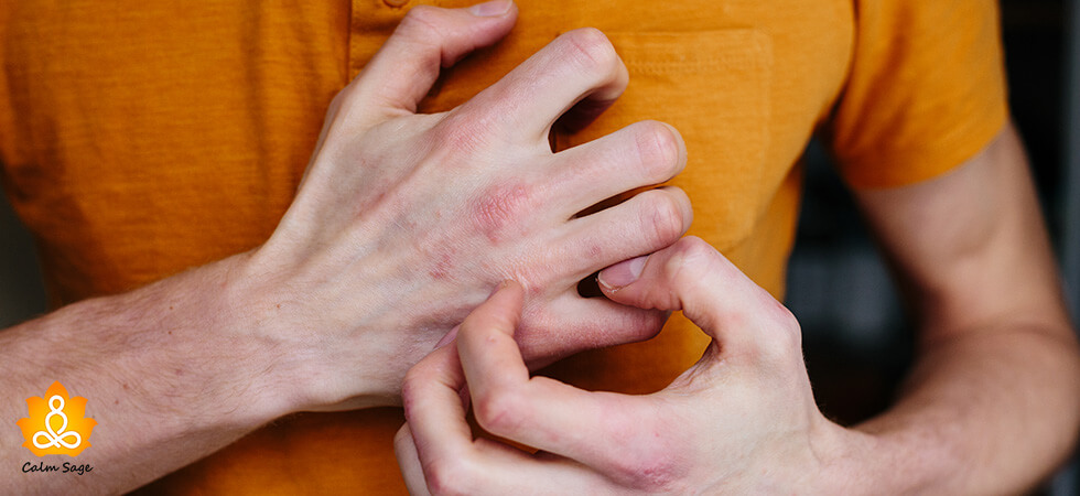 how to deal with Excoriation disorder